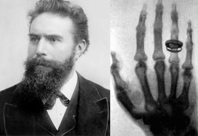 Wilhelm Roentgen - Inventor of X-Rays